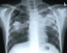 TB x-ray image